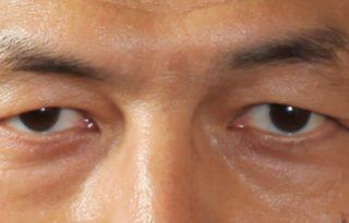 きつい目の目元を…